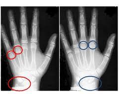 La fragilité de la main